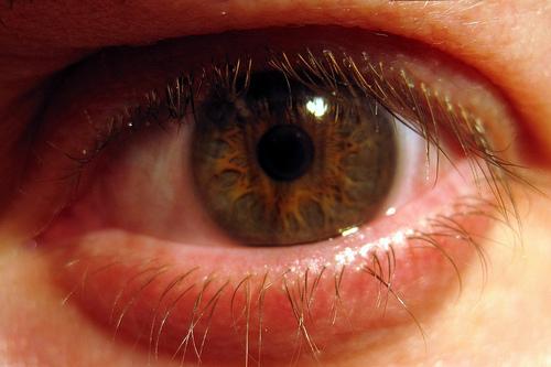 occhi arrossati