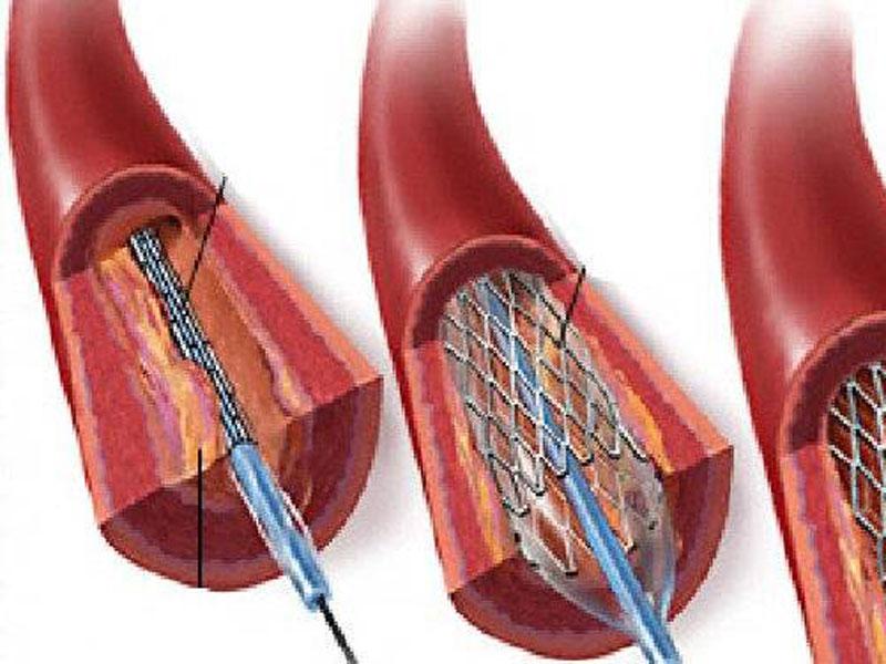 Angioplastica